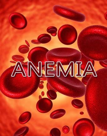terapi-obat-anemia-herbal-nasa