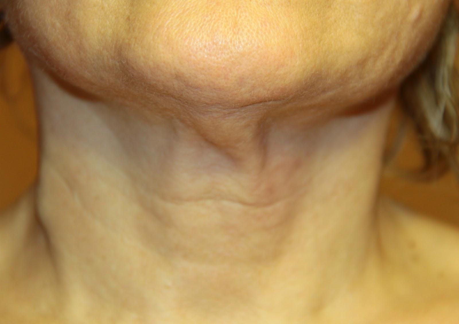 Ruvidità su un petto dopo un mammoplastika