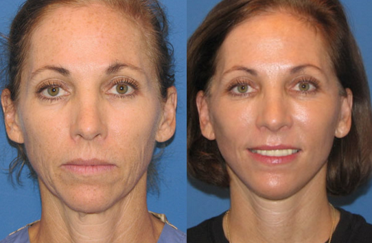 Cosmetic Laser Treatment by Dr. Paul Chasan