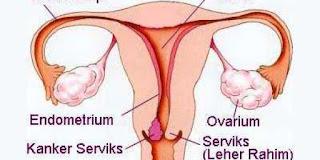 kanker rahim