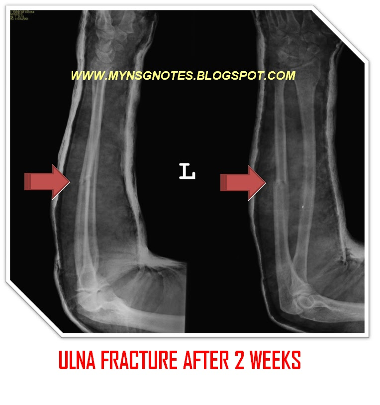 be treated with a cast or fracture brace usually a period of -3.bp.blogspot.com