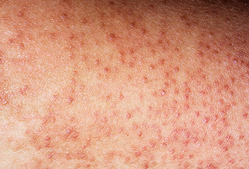 Dpigmentation de la peau au niveau de l'anus - Ooreka