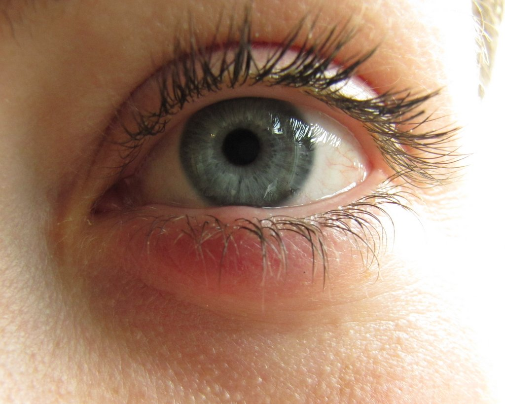 ont i ögat och huvudvärk