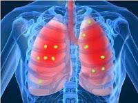 http://www.ervasmedicinaiscuram.com/