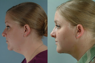 liposuccion cuello antes y despues