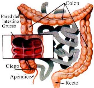 Irrigacion+colon