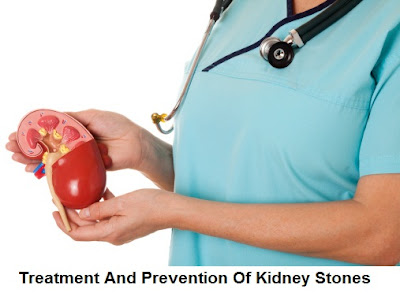 kidney stones: causes, symptoms, diagnosis, treatment and prevention