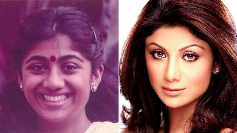 Shilpa Shetty Before and After Surgery