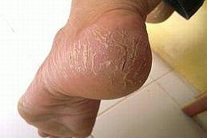 Tumit Pecah-pecah - [www.zootodays.blogspot.com]