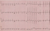 EKG of the Day (8/13)