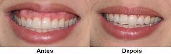 Correção de sorriso com toxina butolinica