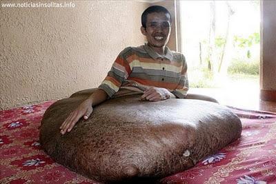 tumor de 90 kilos en la pierna