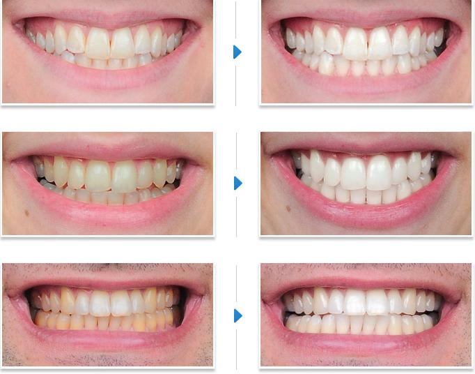 5 secrete dinti mai albi
