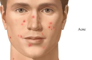 Acne Cartoon illustration