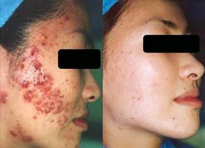 How to Eliminate Acne Naturally and Fast