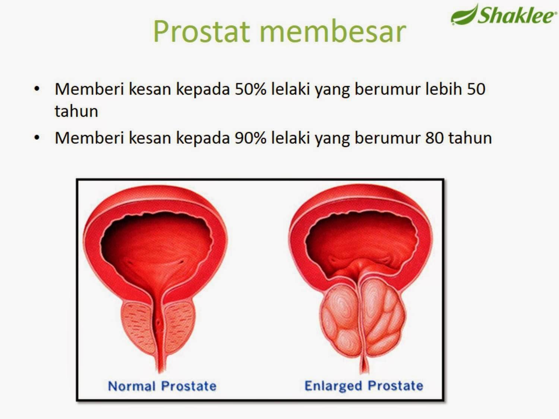 Lelaki & Prostat Membesar