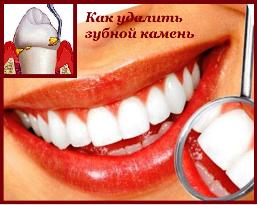 Как в домашних условиях удалить с зубов камни