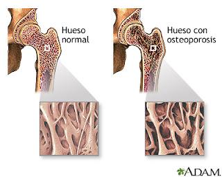 Densidad mineral ósea