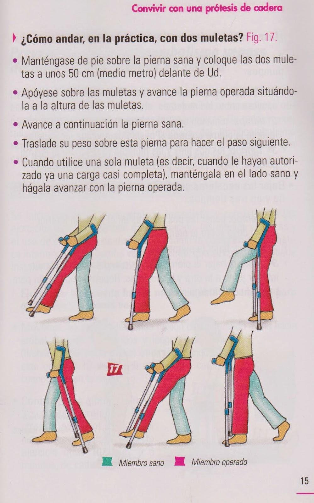 Uso de muletas despues de una protesis total de cadera