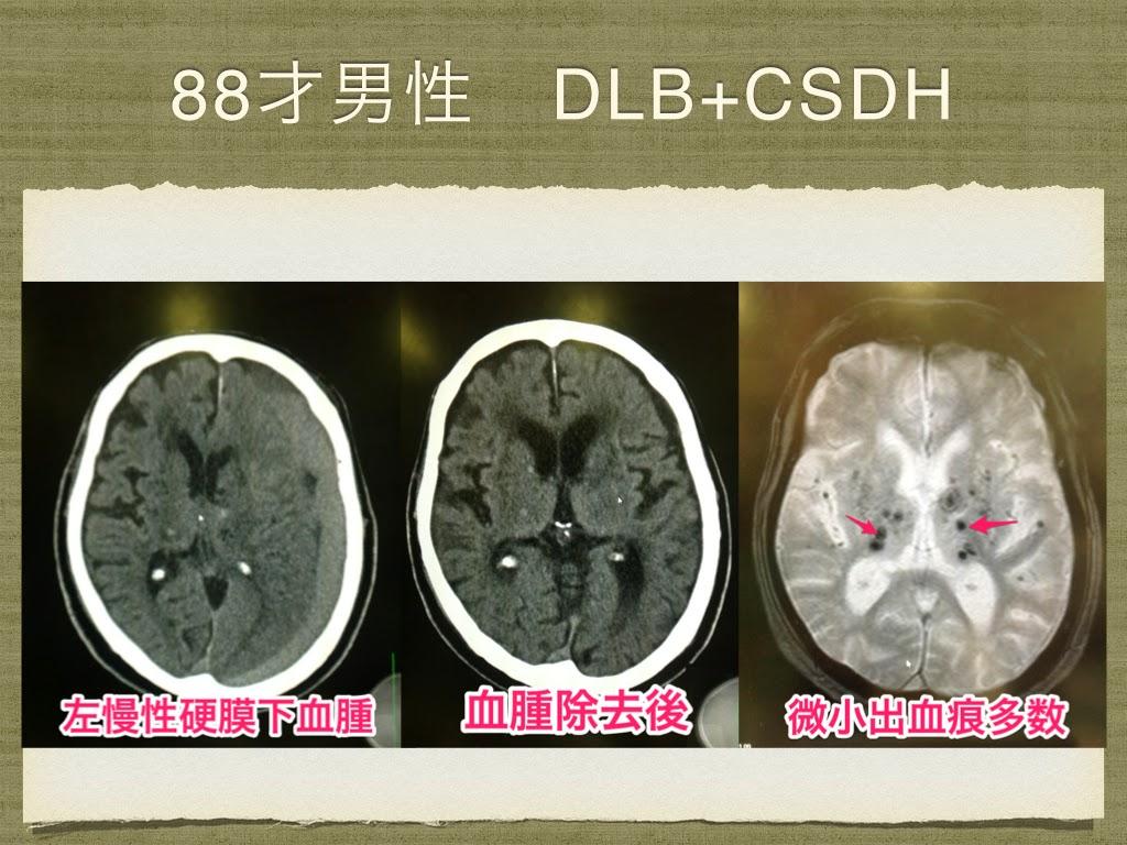 慢性硬膜下血腫は改善したが、症状は改善しなかった。