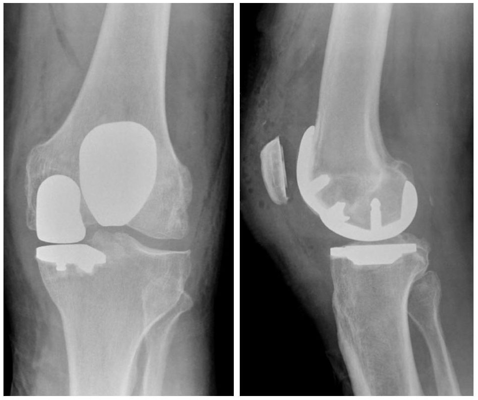 Is makoplasty partial knee replacement right for you xray of bicompartmental mako patellofemoral medial uni publicscrutiny Image collections