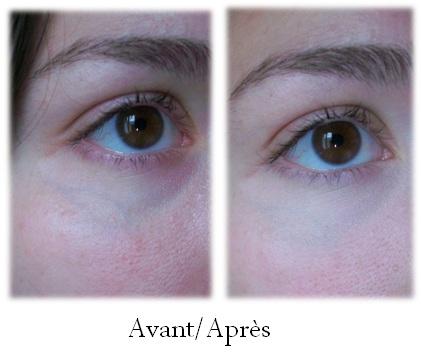 Ma palette anti-cernes et anti-imperfections - Céline
