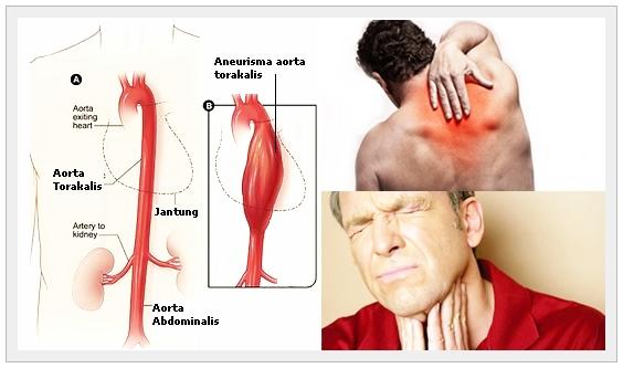 Pengobatan Herbal Aneurisma Aorta Torakalis