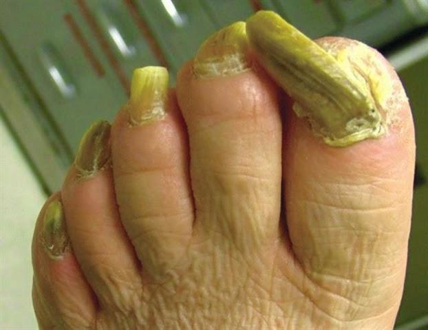 Кривые жёлтые ногти на
