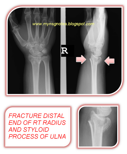 FRACTURE DISTAL END OF RT RADIUS AND STYLOID PROCESS OF ULNA-3.bp.blogspot.com