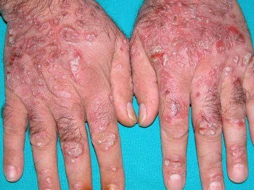 Cara Menghilangkan Gatal Eksim jari Kaki Dan Tangan