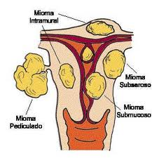 obat tradisional penyakit miom