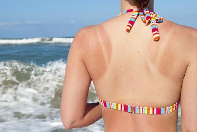 Những nguy hại về sức khỏe khi đi du lịch hè