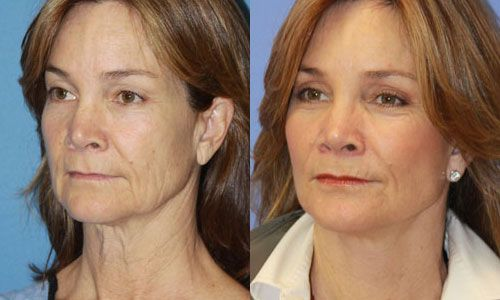 Do Face Yoga Exercises Work For A Completely Organic Youthful Look