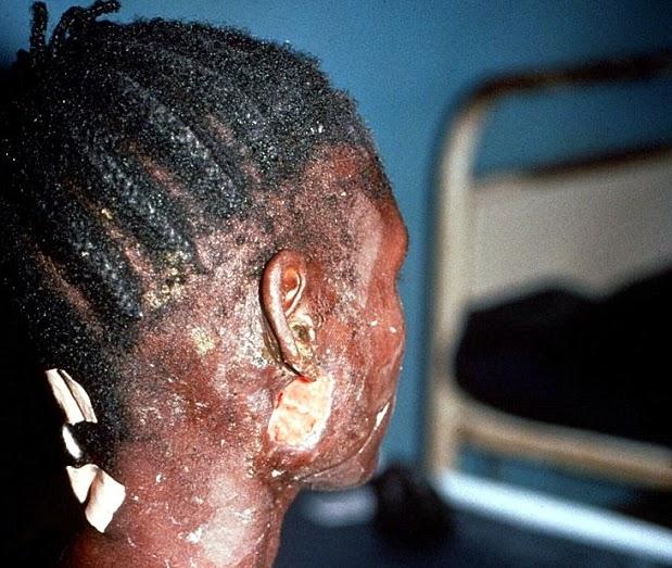 female medical doctor ebola lagos
