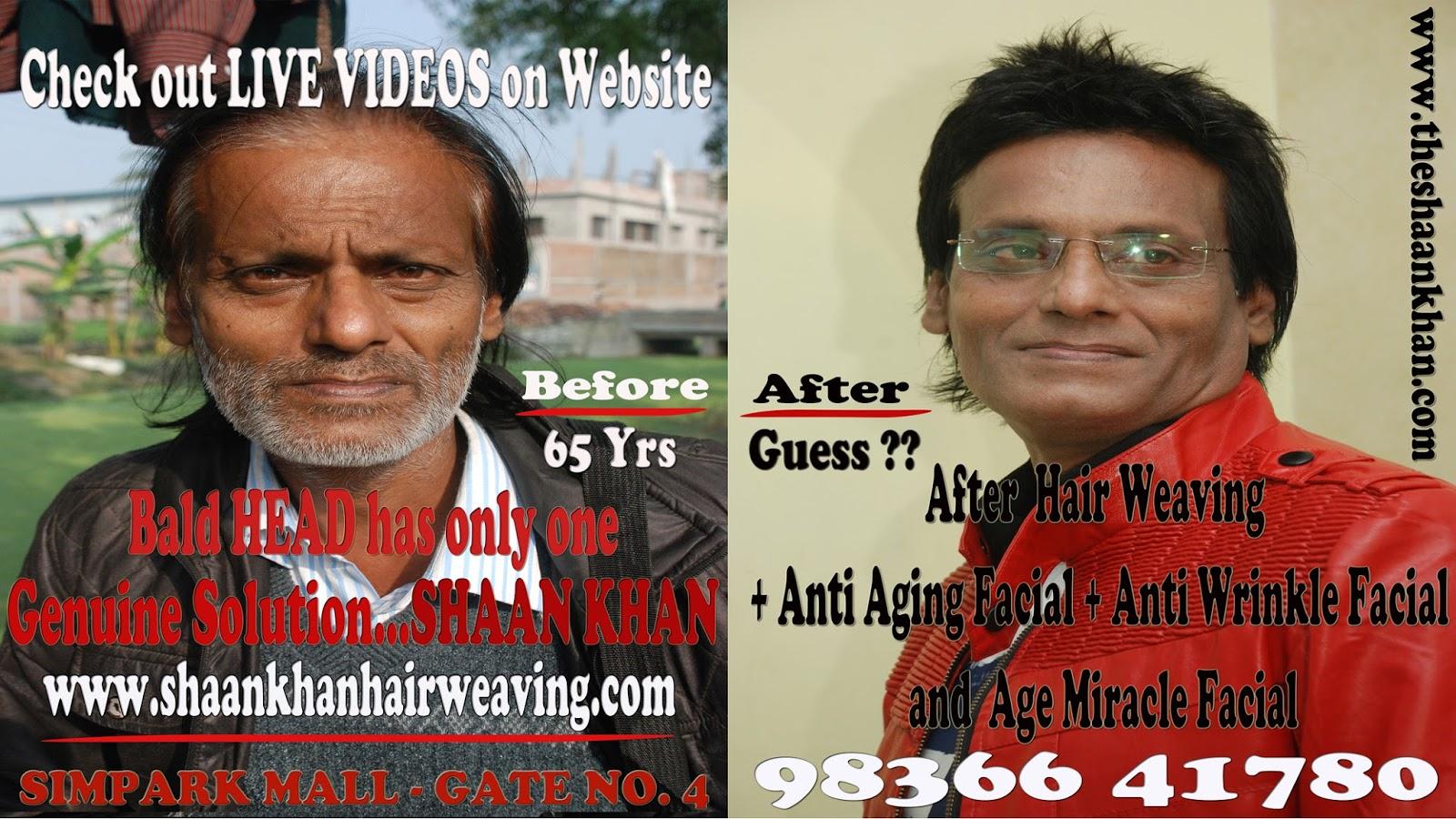 Hair Expert In Kolkata Shaan Khan About Hair Weaving Shaan Khan
