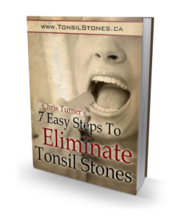 Tonsil Stones Cause Infection : House Remedies For Strep Throat