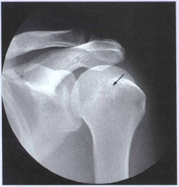 AP shoulder x ray