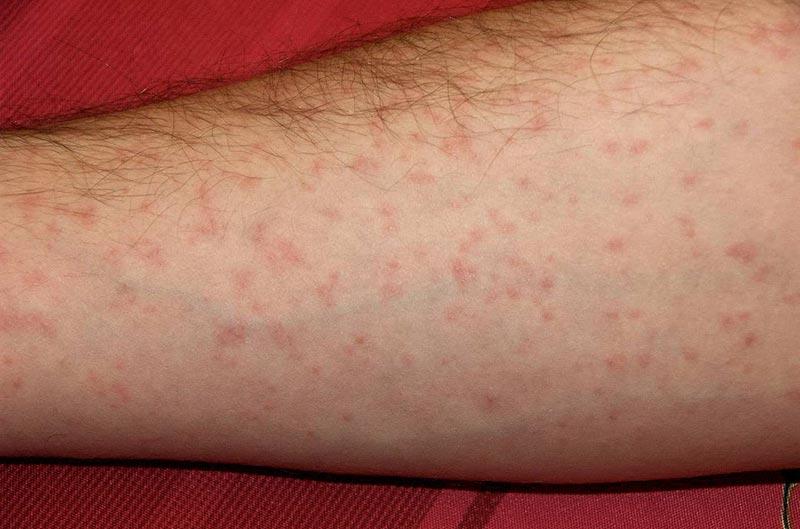 eczema sur tout le corps demangeaisons