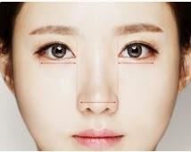 Mata ideal ala bedah plastik Wonjin