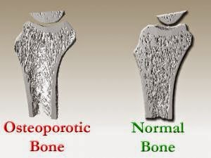 factors that increase the risk of developing osteoporosis While men also develop osteoporosis, this condition is particularly common  among women who  factors that may increase the risk of osteoporosis include.