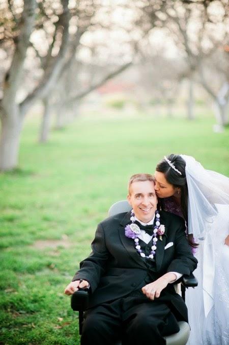 penyakit ALS, penyakit berbahaya, foto pernikahan terindah, pernikahan terindah, pernikahan terunik, amyotrophic lateral sclerosis