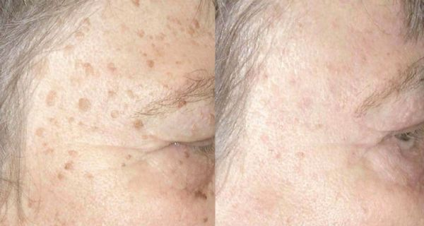 Attractive ... Sun Spots And Liver Spots And Can Range In Color From Light To Dark  Brown. Although They Appear On Different Parts Of The Body, They Are Most  Commonly ... Ideas