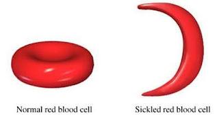 anemia sel sabit