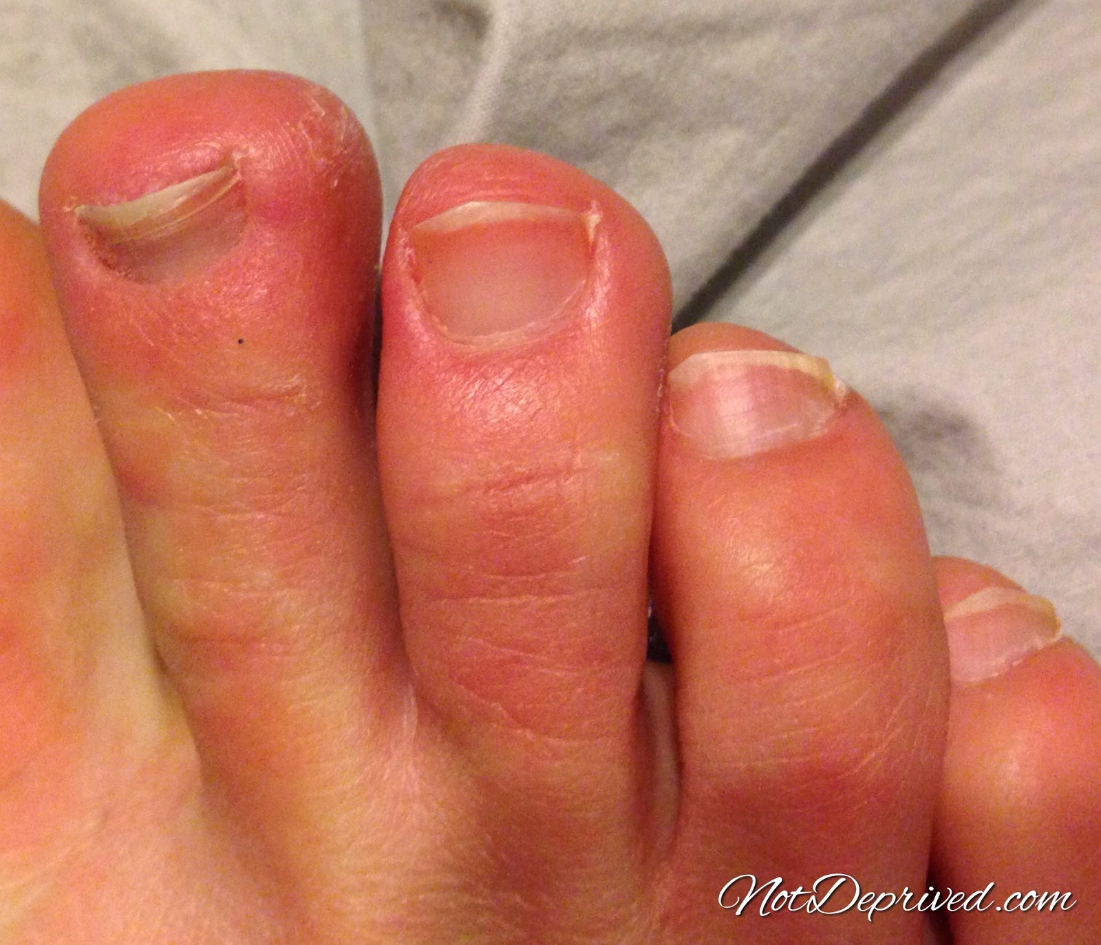 how to help chilblains on feet