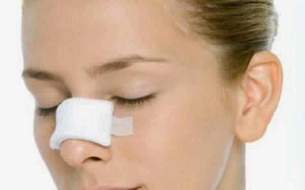 Giải phẫu thẩm mỹ mũi thế nào?