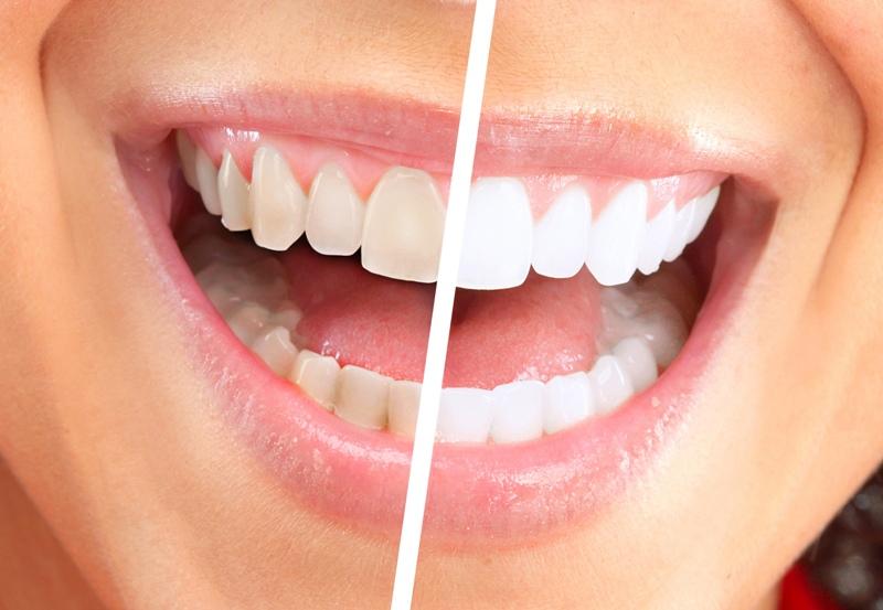 4 Cara Memutihkan Gigi Yang Bisa Dicoba Top Berita Unik Dan Aneh