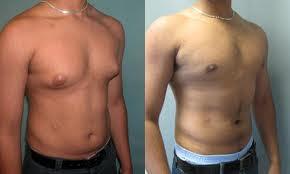 Ginecomastia Tratamiento - Elimina los Senos Masculinos