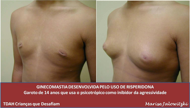 Gynecomastia adolescente -Efeitos colaterais- Risperidona e crescimento de mamas - Clique na imagem