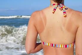 sunburn pada badan
