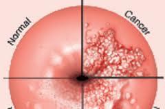 Perbezaan sel serviks normal atau abnormal